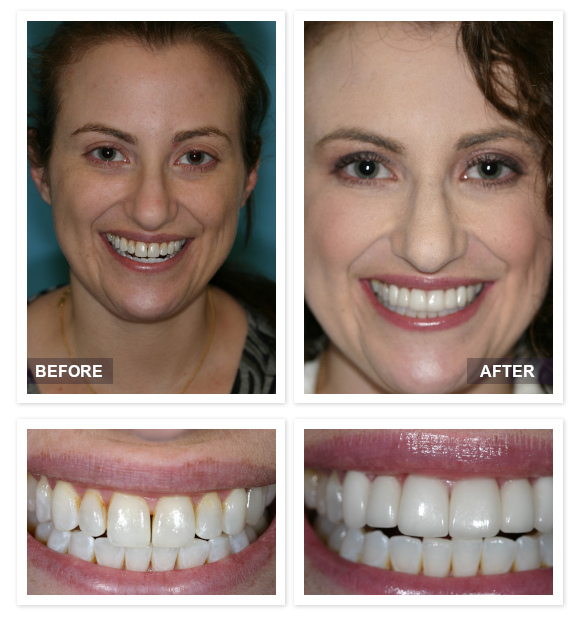David R Moyer DDS Scottsdale Arizona before after Danielle