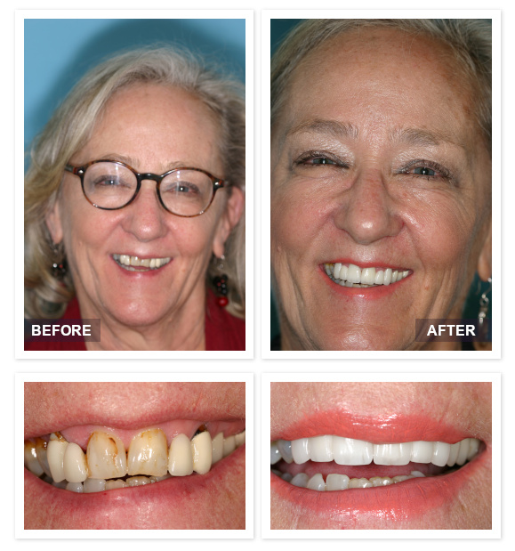 David R Moyer DDS Scottsdale Arizona before after Karen