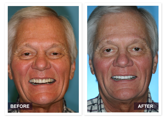 image of David R Moyer DDS Scottsdale Arizona BEFORE AFTER Dino