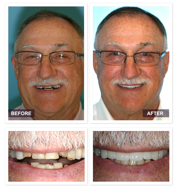 image of David R Moyer DDS Scottsdale Arizona BEFORE AFTER Jeff Patient