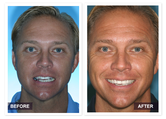 image of David R Moyer DDS Scottsdale Arizona BEFORE AFTER Jeff