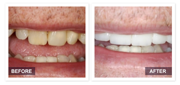 image of David R Moyer DDS Scottsdale Arizona BEFORE AFTER PATIENT 3