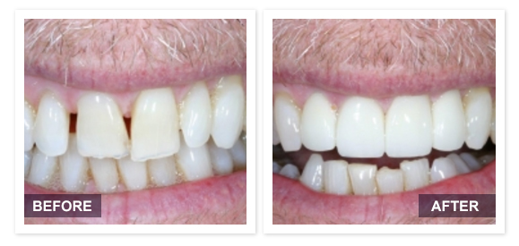 image of David R Moyer DDS Scottsdale Arizona BEFORE AFTER PATIENT 4