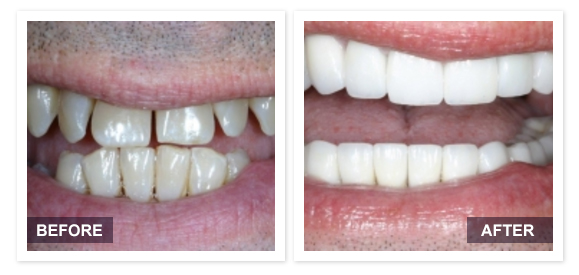 image of David R Moyer DDS Scottsdale Arizona BEFORE AFTER PATIENT 5