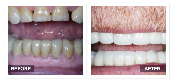 image of David R Moyer DDS Scottsdale Arizona BEFORE AFTER PATIENT 6