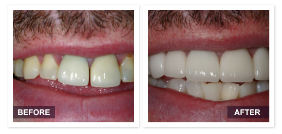 image of David R Moyer DDS Scottsdale Arizona BEFORE AFTER PATIENT 8