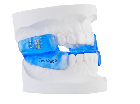 Moses Device at David R. Moyer Cosmetic & Family Dentistry