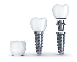 Dental implants are a surgical tooth replacement procedure with a high success rate.
