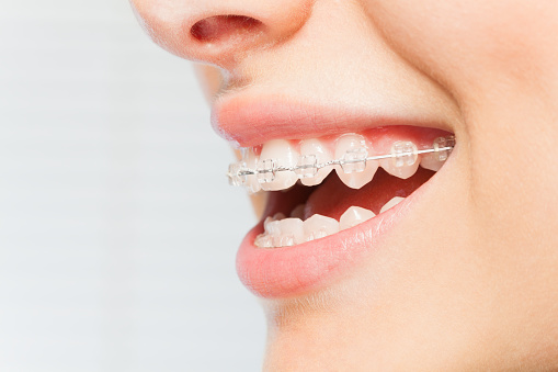 How to Floss Your Teeth with Braces