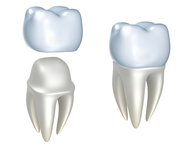 Dental Crowns at David R. Moyer Cosmetic & Family Dentistry