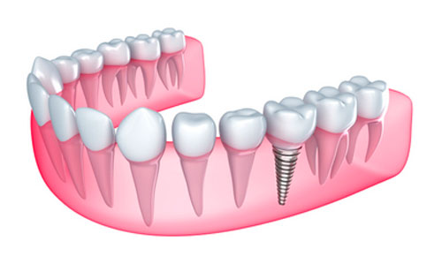 Is Caring for Dental Implants Any Different Than Original Teeth?
