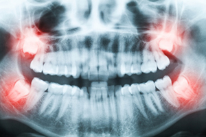 Image of wisdom teeth at David R. Moyer Cosmetic & Family Dentistry.