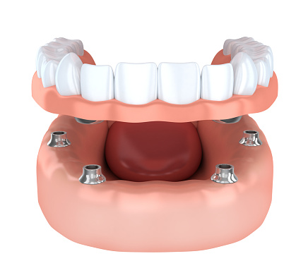 A fixed implant denture is a great long-term solution to tooth loss.