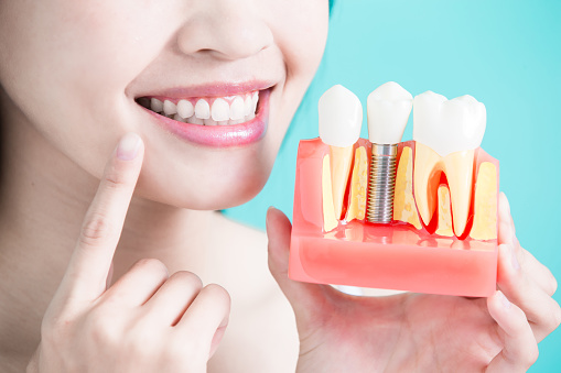Once the dental implant heals, it becomes as much a part of your body as your original tooth.