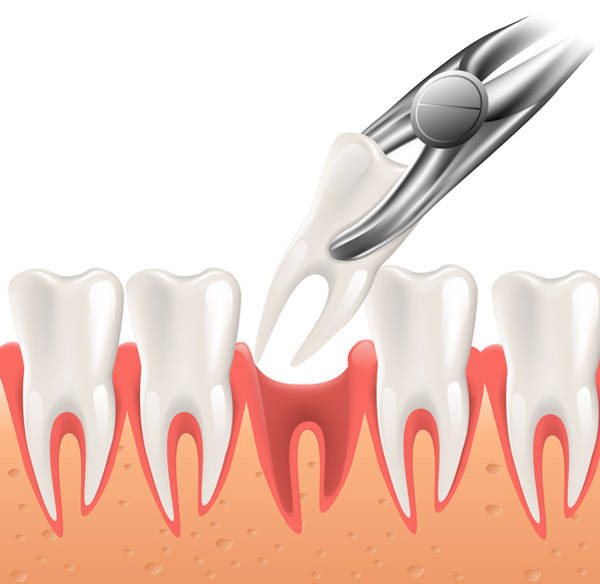 Dental Extraction at David R. Moyer Cosmetic & Family Dentistry