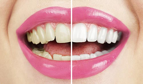 Teethe Whitening at David R. Moyer Cosmetic & Family Dentistry