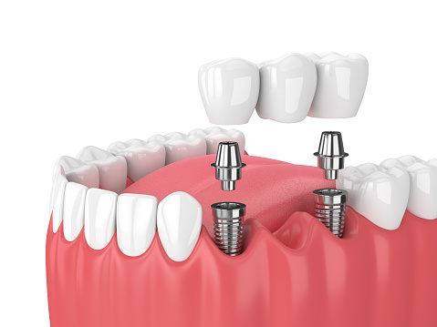 Illustration of a fixed implant bridge at David R. Moyer Cosmetic & Family Dentistry.